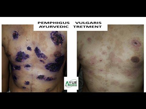 Pemphigus Vulgaris Ayurvedic Treatment @ ayursudha.com. Ayurveda Skin Specialist India.