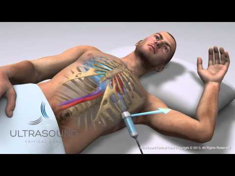 How to obtain: Apical 4 (Four) Chamber Ultrasound View- Training and Techniques - ICU