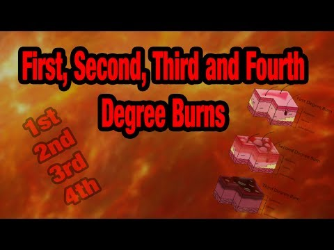 How To Grade BURNS - 1st, 2nd, 3rd and 4th Degree Burns Explained