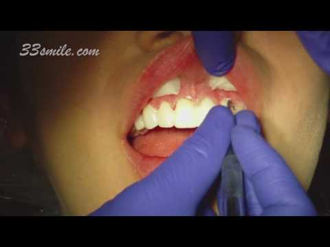 Video of Gum Reshaping and Prepless Dental Veneers Patient at Cosmetic Dental Associates