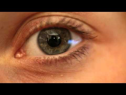 Watch an eye dilate!