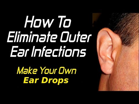 EASILY Treat Swimmer's Ear/Outer Ear Infections WITHOUT Prescription Drugs