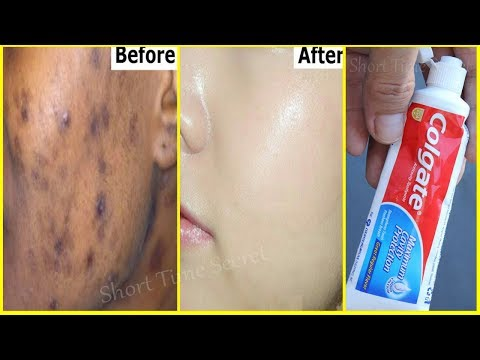 In 2 DAYS-Remove DARK SPOTS  With  Toothpaste |Apply Toothpaste on Your Darkspots and See the Magic