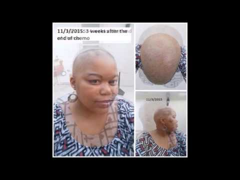 My hair growth journey video 20 weeks post chemo
