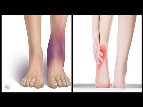 6 Best Fixes For Pain And Swelling In Your Feet And Ankles