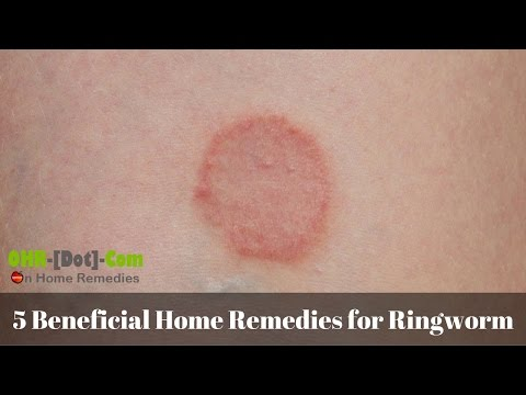 5 Beneficial Home Remedies for Ringworm
