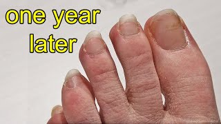 Repainting my Toe Nails After 1 Year of Growing Them Out