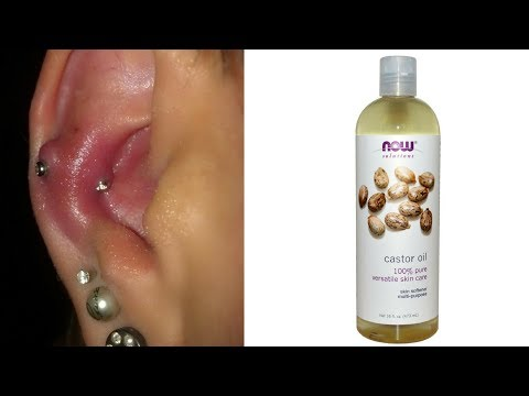 TREAT INFECTED EAR PIERCING IN 7 DAYS WITH CASTOR OIL