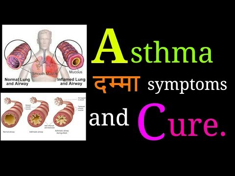 Allergy and Asthma part '2'. Allergic asthma symptoms, solution, chest pain,difficult breathing