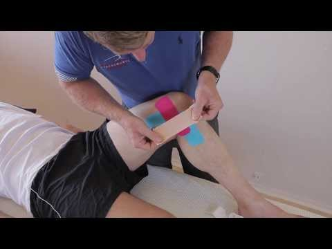 How to treat Medial knee Pain (MCL Sprain / Medial Meniscus) with Kinesiology Tape
