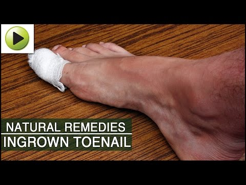 Natural Remedies for Ingrown Toenail