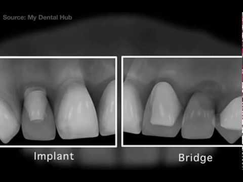 Dental Implants vs Bridge - Dr. Sarabjeet Singh   Chandigarh Orthodontics
