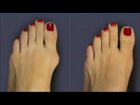 Apple Cider Vinegar And Cherry Juice For Gout
