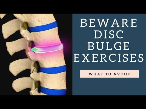 Top Exercises To Avoid For A Bulging Disc And Herniated Disc Or Back Pain And Sciatica