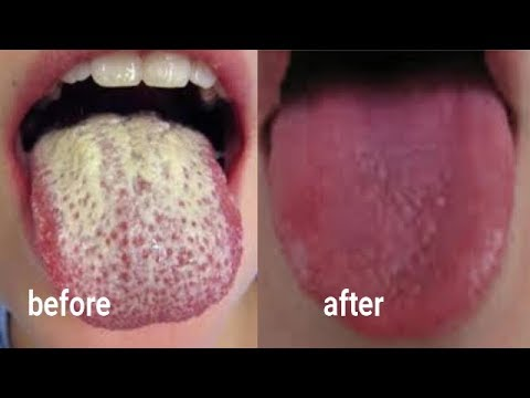 EASY AND NATURAL WAY TO CLEAN DIRTY TONGUE AND REMOVE BAD BREATH