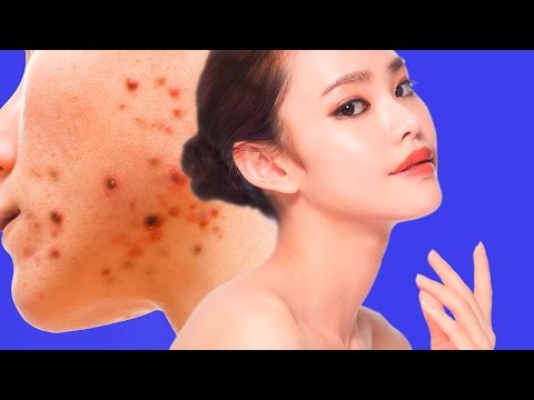 Acne Treatment for Sensitive Skin Dr. Alan Lewis