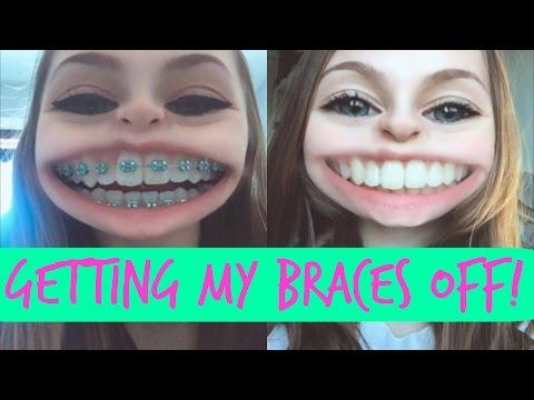 Getting My Braces Off   Vlog!