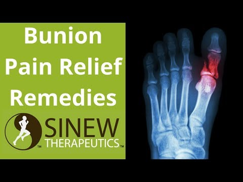 Bunion Pain Relief Remedies