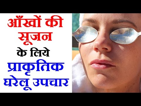 7 Health Tips in Hindi- Eye Swelling Treatment With Easy Health Tips In Hindi-आँखों की सूजन के उपाय