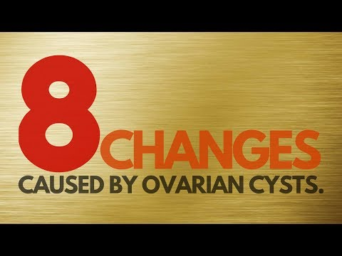 8 Ways OVARIAN CYSTS WILL CHANGE YOUR BODY   |   Prevent And Treat Ovarian Cysts Naturally
