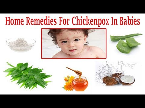 How To Deal With Chickenpox In Babies With Natural Home Remedies