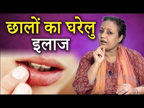 होठों के छालों का असरदार घरेलू इलाज | Cold Sores | Home Remedies in Hindi | Life Care