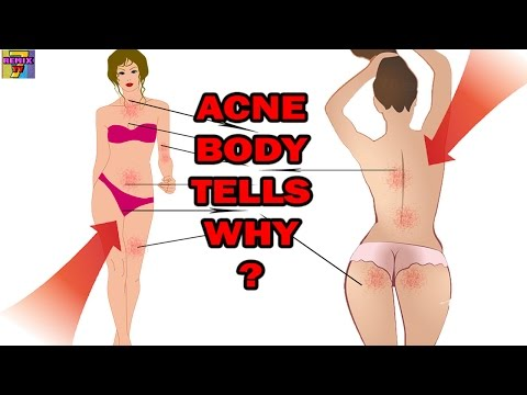 What is your body acne telling you? Acne on Neck, Tummy, Thigh, Crotch, Buttock, Back of Body