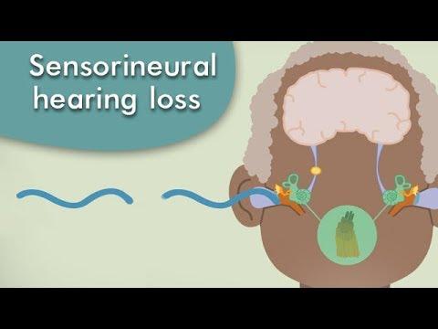 What is a sensorineural hearing loss?