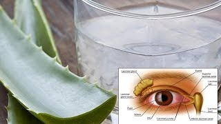 To Improve Your Eyesight Take This Miracle Drink Every Morning