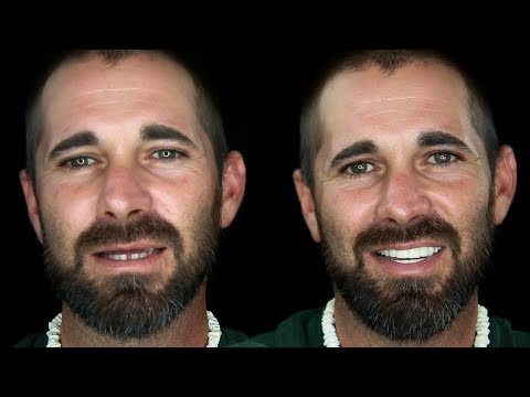 Crash Accident Causes Need For Man's Extreme Smile Makeover by Brighter Image Lab!