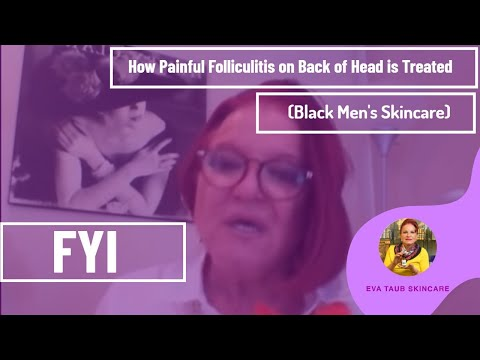 How Painful Folliculitis on Back of Head is Treated (Black Men's Skincare)