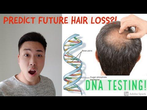 PREDICT FUTURE HAIR LOSS!