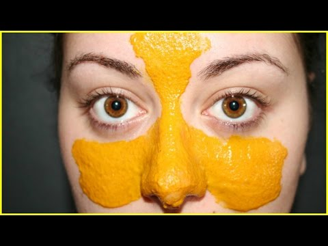Get Rid of Blackheads Naturally | Remove Blackheads
