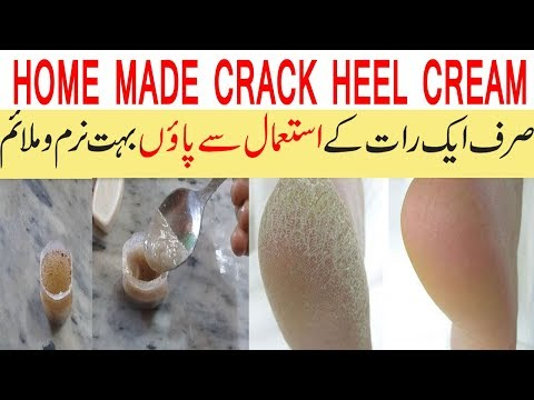 HOME MADE CRACK HEEL CREAM||CRACK HEEL TREATMENT AT HOME||BEAUTY TIPS IN URDU||SUMMER FOOT CARE