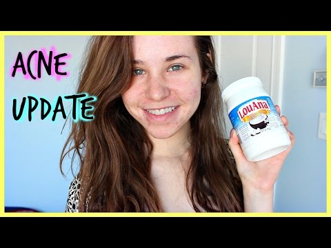 Acne Update: Acne Scars, Skin Care Routine for Acne, Derma roller, Coconut Oil, Diet