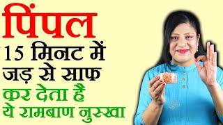 जिद्दी से जिद्दी पिम्पल हमेशा के लिये ख़त्म करने का अचूक घरेलू नुस्खा Pimples Treatment in Hindi