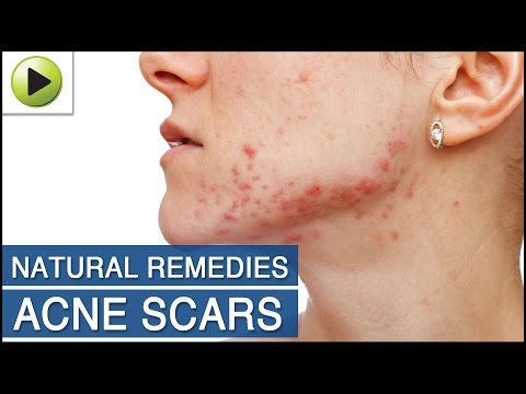 Skin Care - Acne Scars - Natural Ayurvedic Home Remedies
