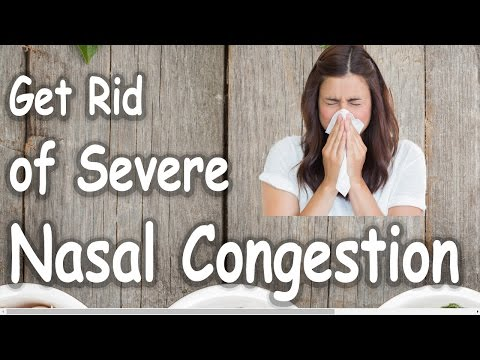 How To Get Rid of Severe Nasal Congestion - Get Nasal Congestion Relief