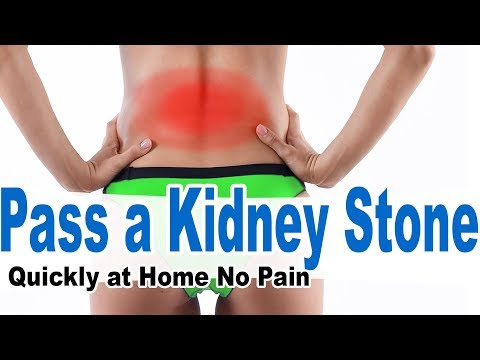 How to Pass Kidney Stones Quickly at Home – 97% of People Don't …
