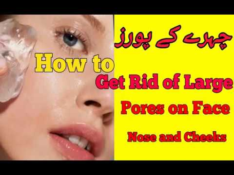 How To Get Rid Of Large Pores On Face, Nose, Cheeks at Home
