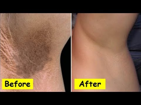 How to lighten Dark Underarms (WORKS) | How to get rid of dark Armpits