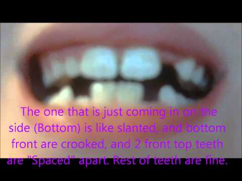 Yahoo answers video (Better than last braces video)