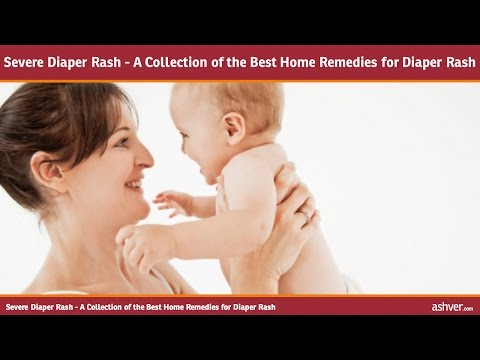 Severe Diaper Rash - A Collection of the Best Home Remedies for Diaper Rash