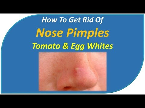 how to get rid of nose pimples - Tomato & Egg whites