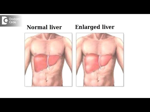 How long will it take for an inflamed liver to heal? - Dr. Nanda Rajaneesh