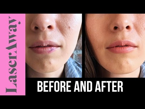 How To Cover Up Brusing from Botox, Lip Injections, and Other Fillers| LaserAway