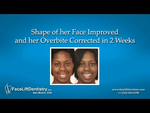Shape of her Face Improved and her Overbite Corrected in 2 Weeks