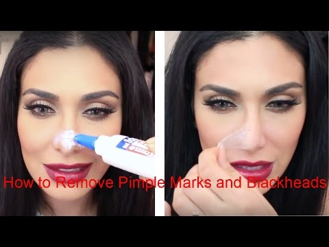 How to Remove Pimple Marks and Blackheads Get Rid Acne Scars Fast Remove Acne Marks And Blackheads