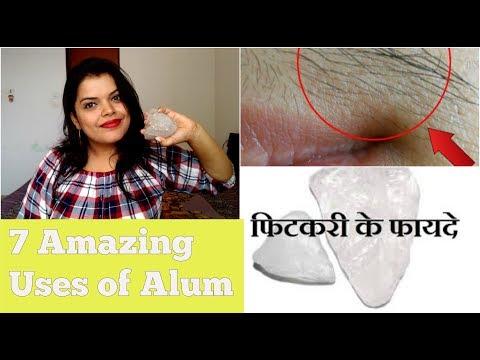 7 USES OF ALUM FOR SKIN IN HINDI | FITKARI KE FAYDE OR UPAY| FACIAL HAIR REMOVAL
