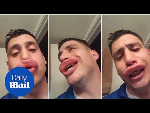 Man left with HUGE swollen lips after yellow jacket wasps sting - Daily Mail